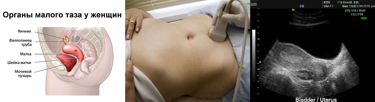 Узи при беременности в славянске